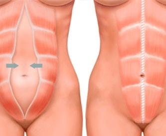 Диастаз прямых <br>мышц живота